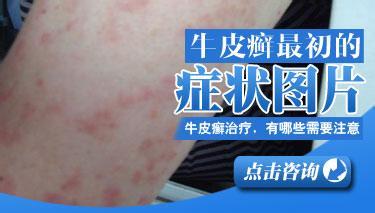 牛皮癣疾病在初期的症状表现