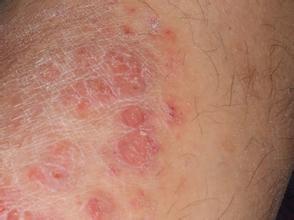 牛皮癣与其他皮肤病的区别