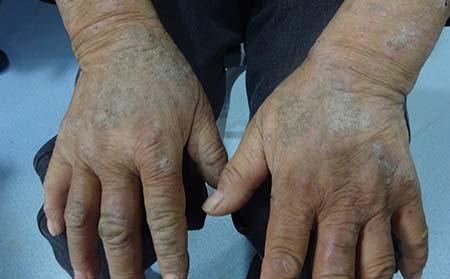 牛皮癣皮肤病为什么难治