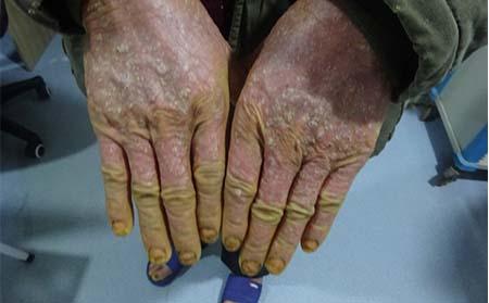 牛皮癣皮损容易出现在哪些部位