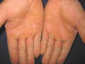 手指牛皮癣有什么症状?