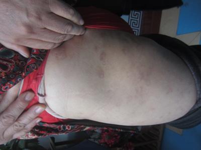 孕期牛皮癣怎么治疗