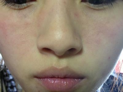 面部牛皮癣有哪些症状表现