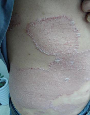 毛囊性牛皮癣临床症状介绍