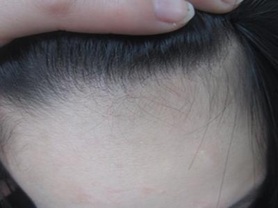 头部牛皮癣发病时的症状有哪些