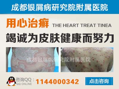红皮型银屑病的诊断方法是什么
