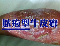 脓庖型牛皮癣有哪些症状特点
