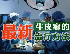 成都治疗牛皮癣的医院